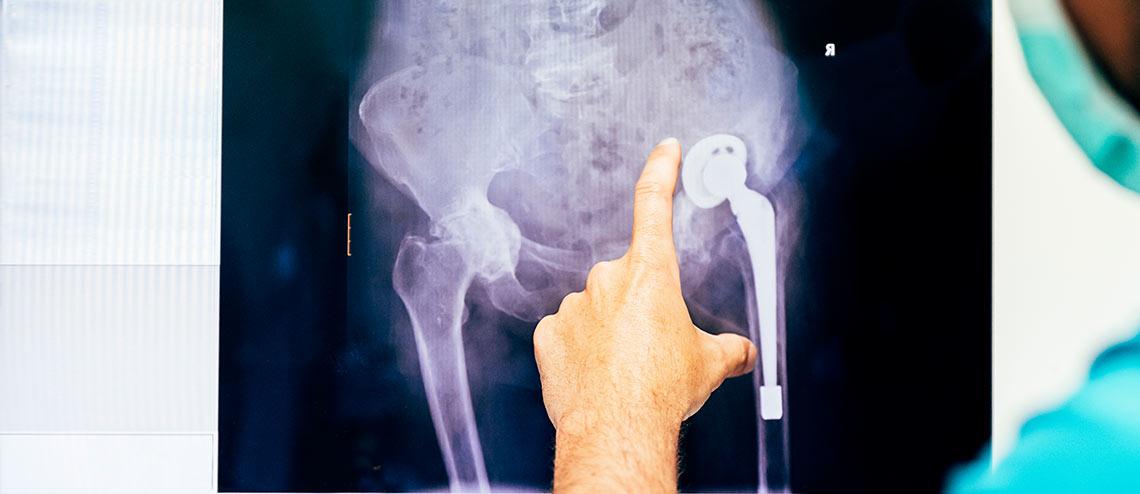 Ein Orthopäde in OP-Kleidung betrachtet eine Hüftprothese im Röntgenbild nach einer Arthrose Operation