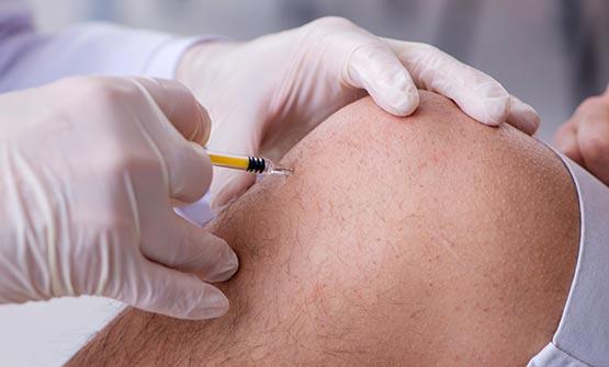 Arzt setzt Hyaluronspritze ins Knie eines Arthrose-Patienten